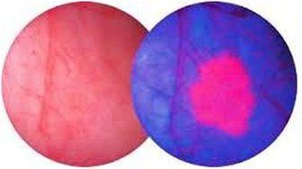 Rak pęcherza - Obraz pęcherza w świetle białym