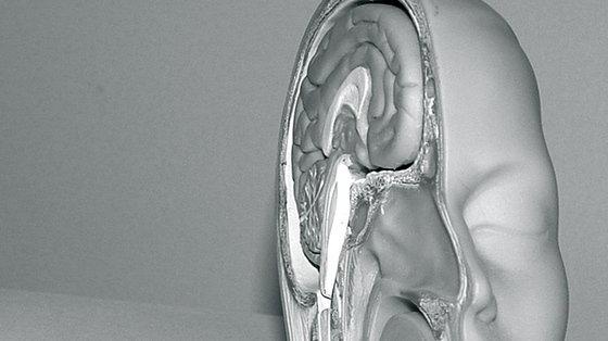 Alzheimer: nowy marker pozwalający ocenić ewolucję choroby