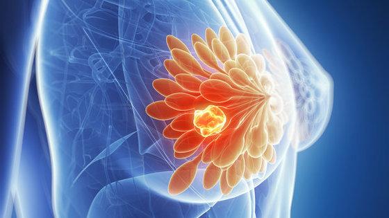 Metody leczenia raka sutka