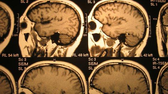 Nadzieja na skuteczniejszą terapię niektórych zaburzeń psychicznych