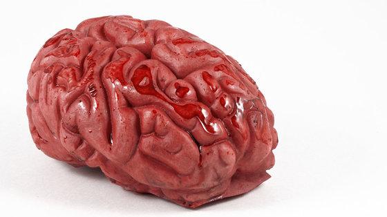 Odkryto nową, rzadką, genetyczną chorobę mózgu