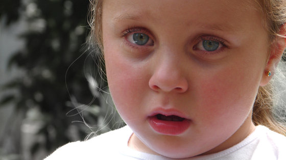 Zaczerwienienie twarzy - skutek zawstydzenia czy objaw chorobowy?