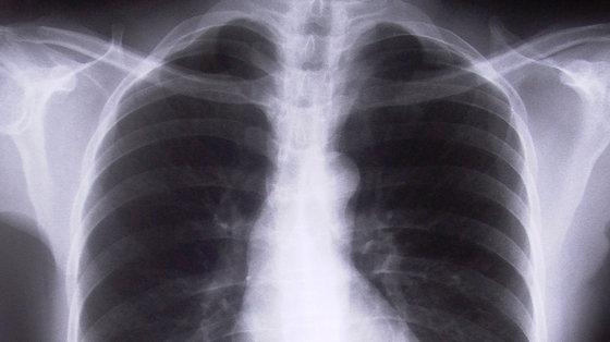 Czy zanieczyszczenia zwiększają ryzyko raka płuc?