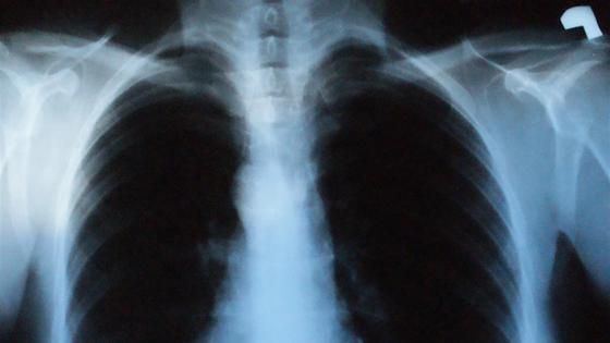 Choroby płuc odpowiedzialne za 1 zgon na 10