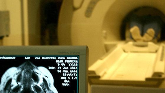 Większość ofiar incydentu naczyniowo-mózgowego jest leczonych zbyt późno, według pewnego badania