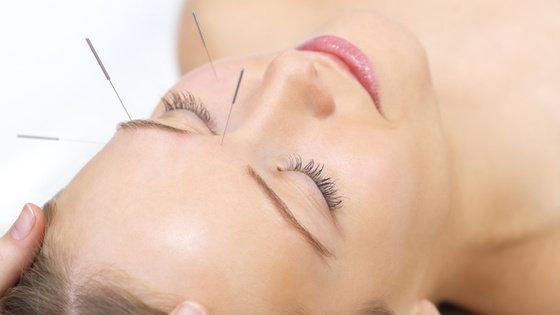Akupunktura: Jak wygląda zabieg? Jakie choroby leczy?